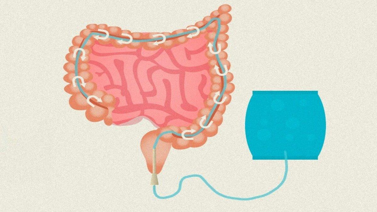 Polêmica nacional, prescrição de ozonioterapia contra Covid-19 foi tema de projeto de lei na Alesc
