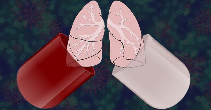 Medicamento para crises de gota diminuiu inflamação pulmonar causada pela covid-19