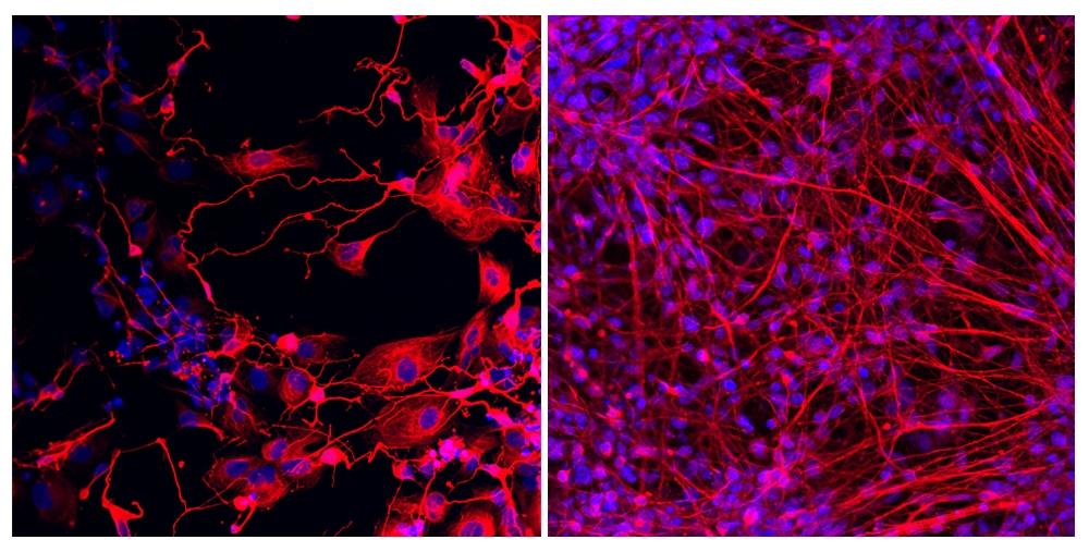 Pesquisadores utilizam reprogramação celular para identificar as causas de deficiência intelectual grave