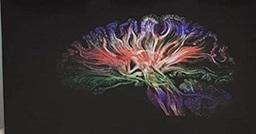 Pesquisa identifica porque inflamações sistêmicas aumentam o risco para Doença de Alzheimer